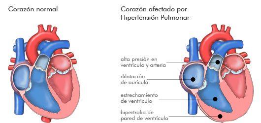 Coágulos sanguíneos que causan hipertensión pulmonar