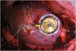 Continúan investigaciones para que los marcapasos funcionen con los propios latidos del corazón