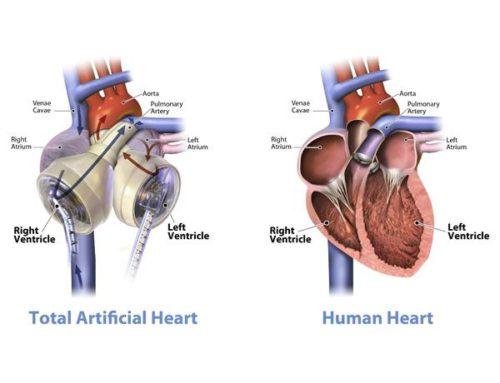 Nuevamente implantan en España un corazón artificial total