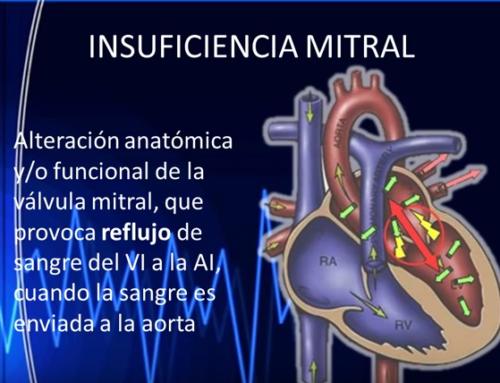 El Clínico San Carlos aplica tratamiento pionero en España para la insuficiencia mitral