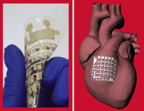 Parche bioeléctrico implantable que puede monitorear y tratar enfermedades cardíacas