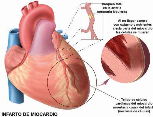 Descubren un posible fármaco para tratar los efectos de los ataques cardíacos